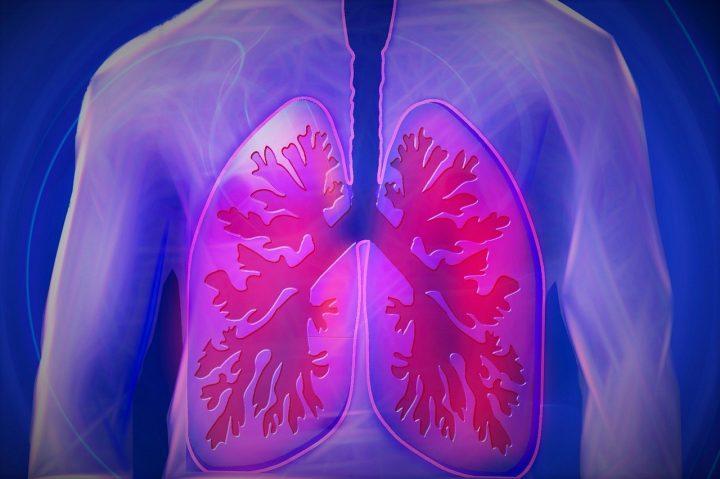 Esenciálne oleje na zápal pľúc